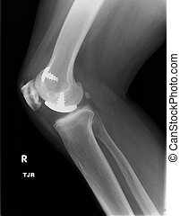 knee xray with hardware - xray of knee with repair screws