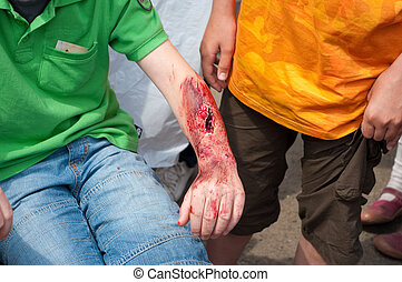 wounded - child with a fake wound on his arm.