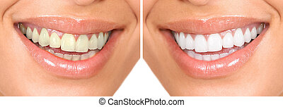 Healthy teeth - Whitening Dental care healthy woman white...