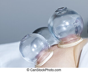 Cupping therapy in traditional chinese medicine - Applying...