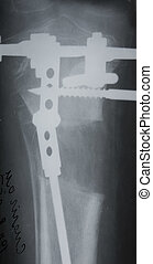tibia x-ray picture - osteotomy and external fixation