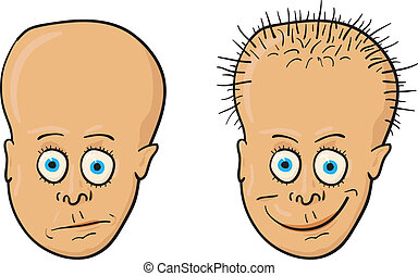Vector illustration - patient with a bald head and hair