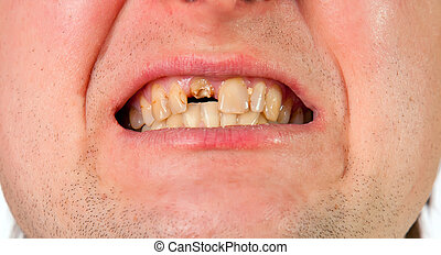 Young man mouth with broken tooth, closeup view isolated on...