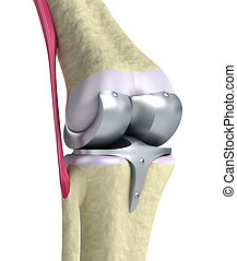 Knee and titanium hinge joint. Isol