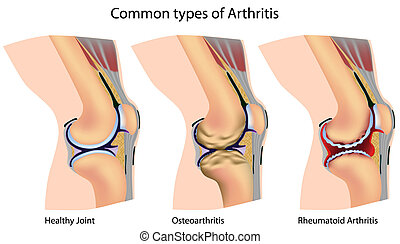 Common types of arthritis - Knee anatomy with arthritis,...