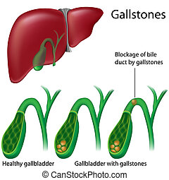 Gallstones - Gallbladder with and without stones, eps8