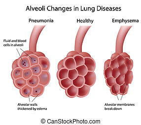 Alveoli in lung diseases - Alveoli changes in different lung...