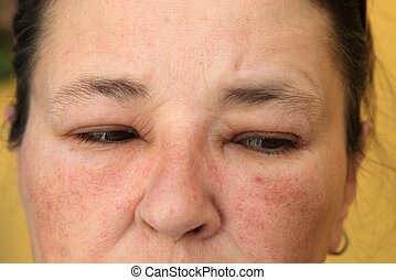 Allergy or conjunctivitis - close-up from a swollen face