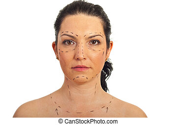 Woman face prepared for plastic surgery - Portrait of mid...