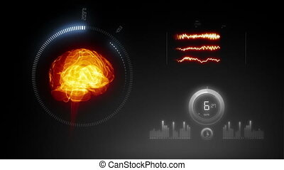 X-ray interface u2013 medical san of human brain