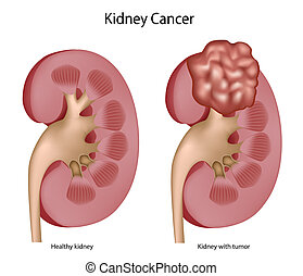 Kidney cancer, eps8