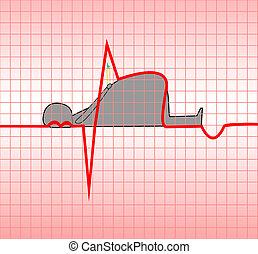 Myocardial infarction - ECG, acute, myocardial, myocardium,...