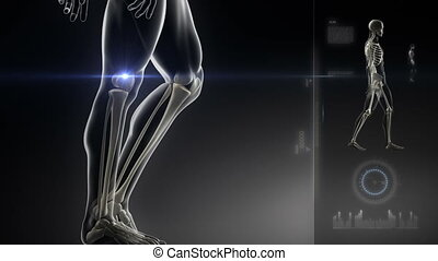 Walking man with knee scan