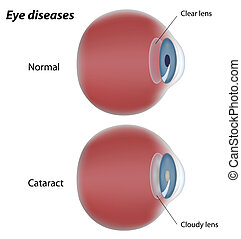 Eye disease cataract, eps8 - Diagram showing cataract eye...