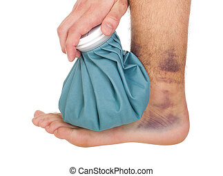 Icing a sprained ankle - young male icing a sprained ankle...