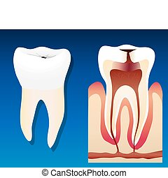 Unhealthy tooth - A vector llustration showing an unhealthy...