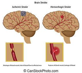 Brain stroke, - 2 types of brain stroke and their causes