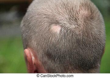 Man with hair loss - Man with alopecia areata at the back