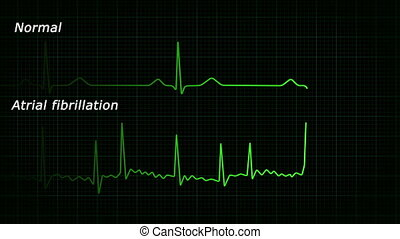 Atrial fibrillation ecg loop, hd - Normal and atrial...