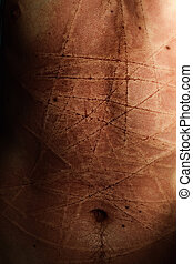 Male abdomen with scars from cuts closeup