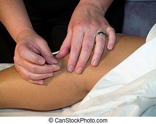 Acupuncture of the knee on an african american woman