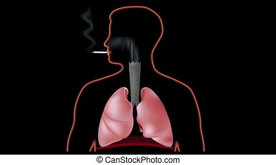 Effect of smoking on lungs, hd - Smokers lungs with tar and...