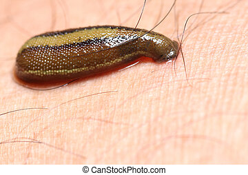 leech for treatment - leech for nature blood treatment
