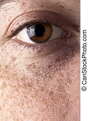 Eye with Freckles - Brown Eye with Freckles on a Cheek