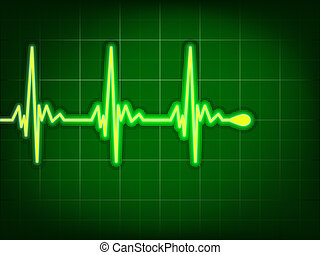 Heart cardiogram on it deep green. EPS 8 - Heart cardiogram...