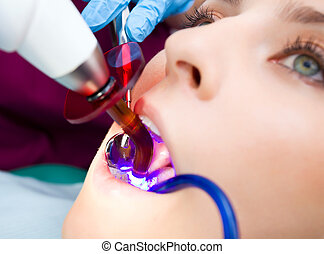 dentist technology - Close-up of female with open mouth,...
