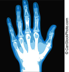 hand xray - xray hand isolated on the black background