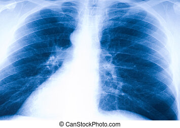 X-ray photo of human lungs