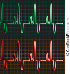electrocardiograms of the human heart