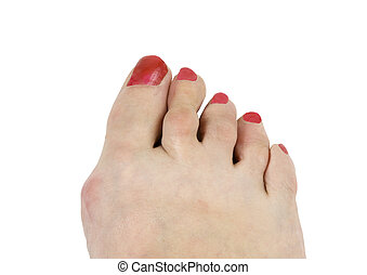 hammer toe and bunion on a elderly female