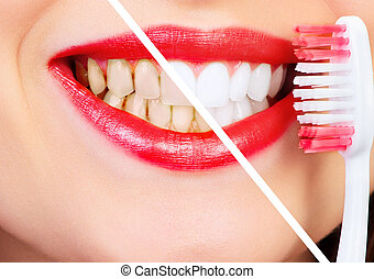 Smile - Healthy beautiful smile Dental health Whitening