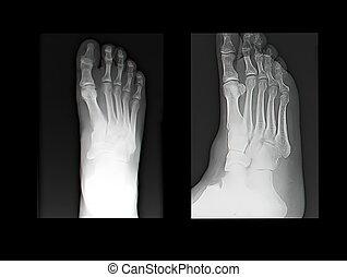 X-ray - X-ray film