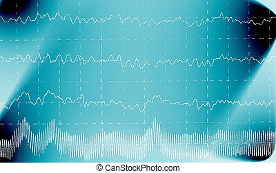 Brain wave on electroencephalogram