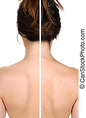 Left side: good and smooth skin after treatment - right side...