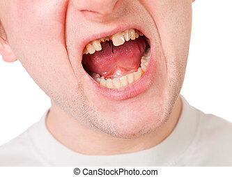 Young man face with broken tooth, closeup view isolated on...