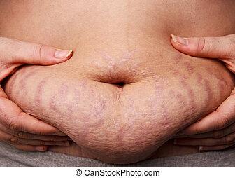 Belly Fat Stretch Mark - Woman pinching post-pregnancy tummy...