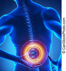 espinha dorsal, problema, Raio X, vista