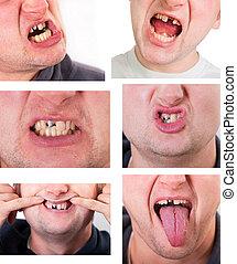 quebrada, dente, jovem, homem, rosto