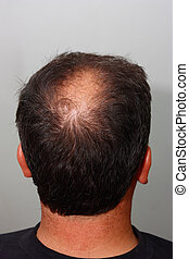 Male head with hair loss symptoms back side