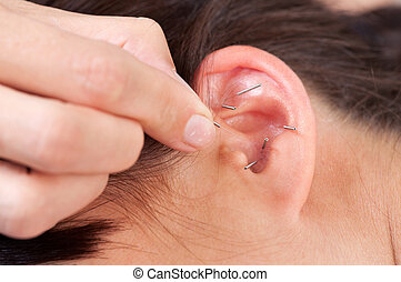 Ear Acupuncture Detail - Acupuncture therapist placing...