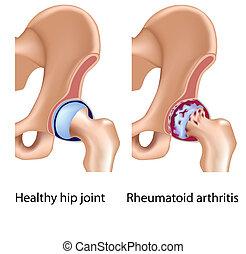 Reumatóide, artrite, quadril, conjunto
