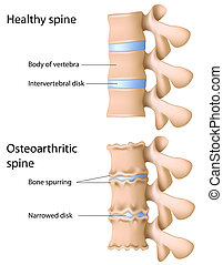Osteoarthritis of the spine, eps8