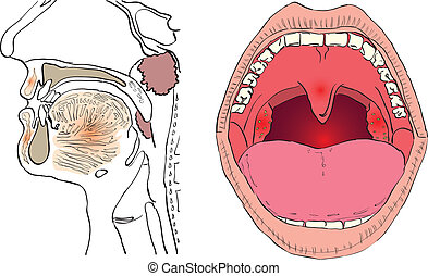 Adenoid - Vector illustration of a disease of the adenoids...