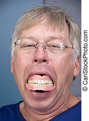 Dentures - A man displays his false teeth (dentures) which...