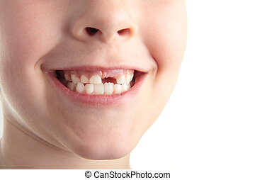 Baby teeth - A young boy showing off his new gap