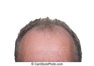 Male Pattern Baldness - Balding Head Showing Male Pattern...